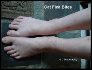 Bites from Cat Fleas on a child's feet and legs
