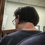 A rash of red welts on the back of a person's neck, caused by the hairs of browntail caterpillars.