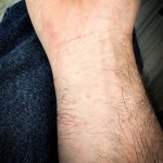 Example of a milder case of a reaction to the Browntail caterpillar hairs on a person's wrist.