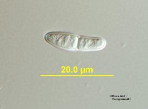 Ascospore