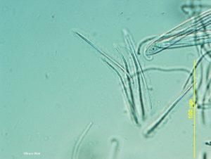 Ascospores