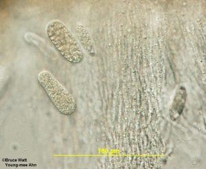Ascospores amid paraphyses