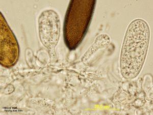 Miscellaneous samples: Conidia on conidiophores