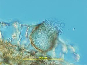 Pycnidium cross section