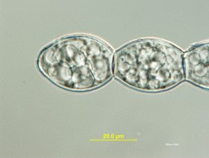 Sample 2: Conidia