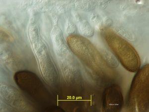 Sample 1: Conidiophores and conidia