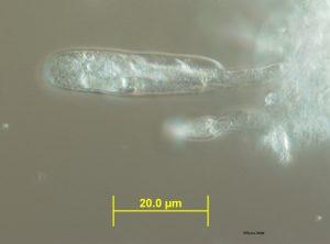 Sample 1: Conidiophore and conidium