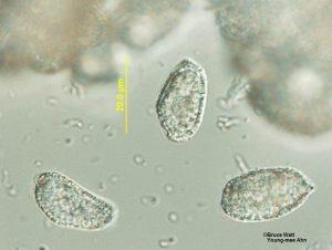 Aeciospores