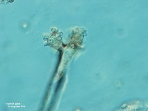 Conidiophores with conidia