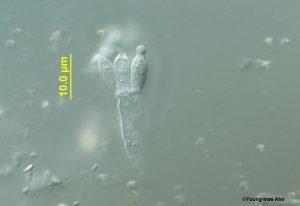 Penicillium conidia and conidiophores