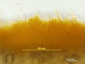 Cross section of telium