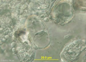 microscope view of conidia