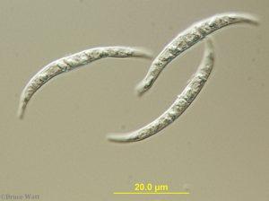 Fusarium conidia under microscope