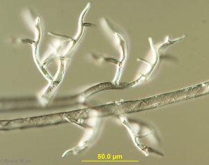sporangiophores under microscope