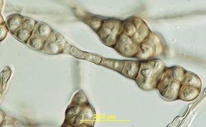 Alternaria dauci pathogen under microscope