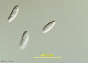 microscope view of Colletotrichum pathogen