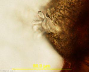 gloeosporium pathogen under microscope