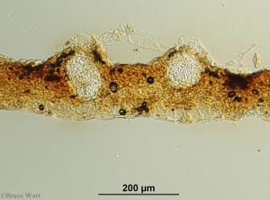 Pycnidia cross-section