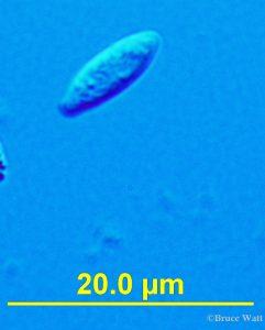 microscope view of an Aureobasidium conidium