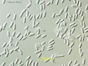 Tubercularia conidia under microscope