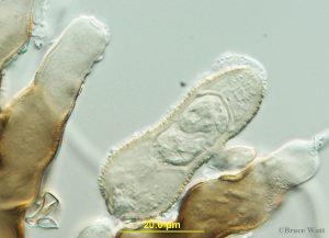 Fungal pathogen under microscope