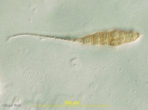 Alternaria conidium under microscope