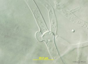 Clamp connection under microscope