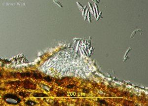 pycnidia releasing spores