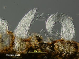 Conidia emerging from pycnidia