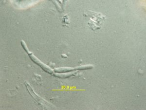 Conidia and phialides