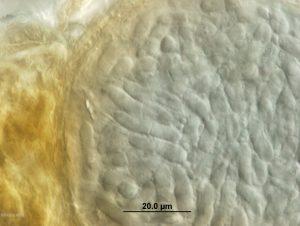 Croos-section of pycnidium