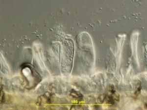 Asci releasing ascospores