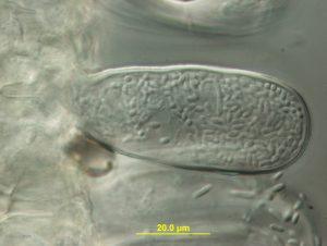Asci with ascospores