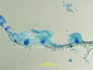 Cross-section of sporodochia