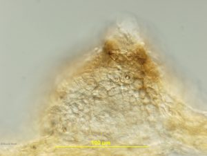 Cross-section of pycnidium