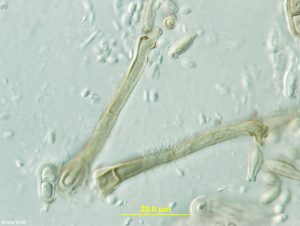 Conidiophores and conidia