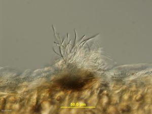 Conidiophores and conidia