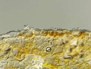 Cross-section of uredinium
