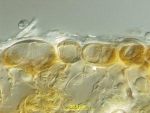 Cross-section of uredinium with urediniospores
