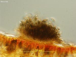 Cross-section of acervulus on leaf tissue