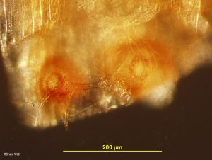 Whole mount of pycnidia in leaf tissue showing ostioles