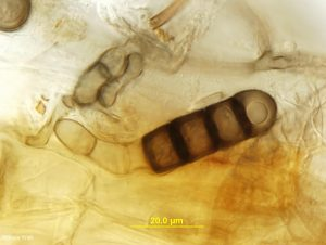 Chlamydospore in root tissue