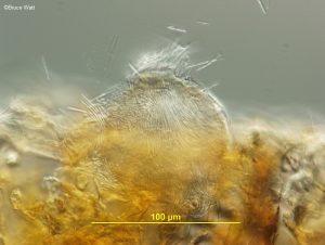 Vertical section of pycnidium