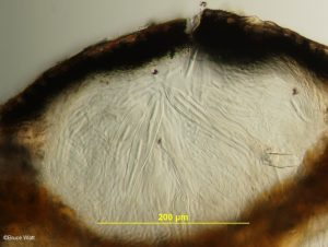 Vertical section of hysterothecium with mature asci surrounded by paraphyses