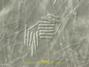 Conidia from culture