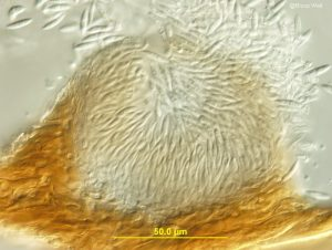 Pycnidium - Vertical section