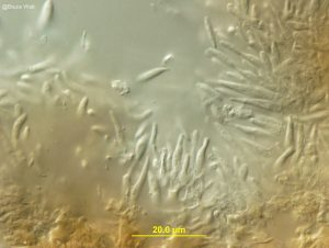 Conidiophores
