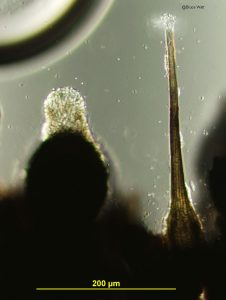 Pseudothecium (left) and pycnidium (right)