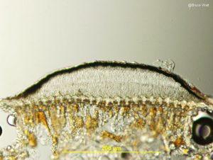 Conidioma vertical section