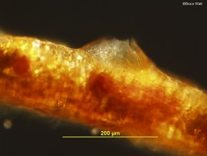 Vertical section of acervulus of Phloeosporella anamorph.